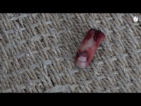 Opoukhli les veines sur les pouces des pieds