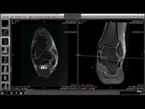 Aerobic de apă și artroza articulației șoldului