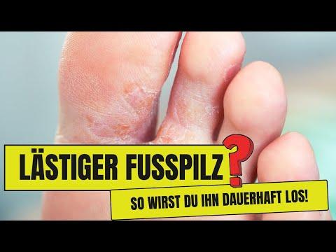 Fußpilz behandeln / Was tun bei Fußpilz?