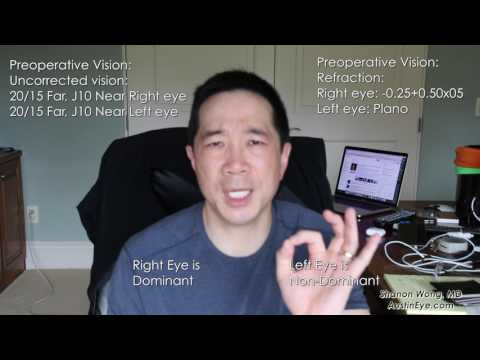 2 weeks after symfony lens. First-hand experience from ophthalmologist - Shannon Wong, MD.  Vlog #15