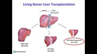 Patient Education: Living Donor Liver Transplantation