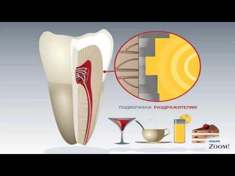 Как снять чувствительность  зубов,  механизм  возникновения  боли