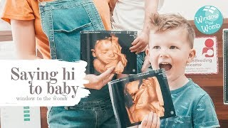 The journey to five | Saying hi to baby | Window to the womb