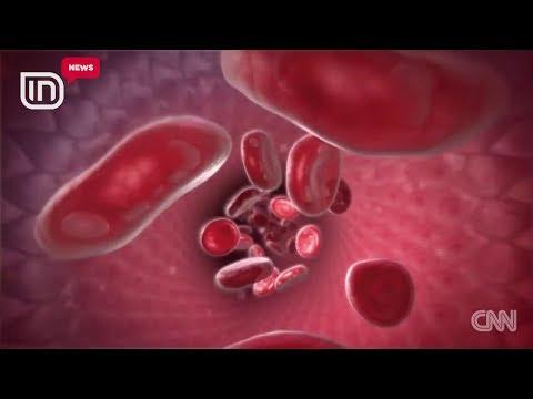 Boris L dhe diagnoza dhe trajtimin e hipertensionit