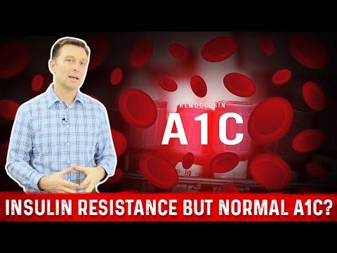 Diagnose von Diabetes in ICD-10