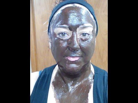 Beauty injections ng facial wrinkles