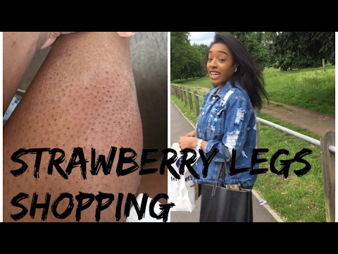SHOPPING FOR INGROWN HAIR PRODUCTS | LETS GET RID OF THOSE STRAWBERRY LEGS | FOLLOW MY JOURNEY