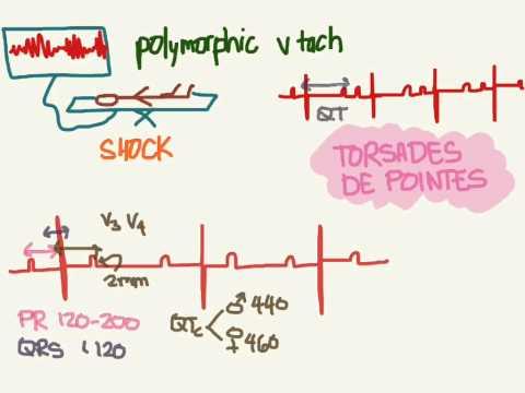 Video EKG 08: QT Interval and Torsades de Pointes