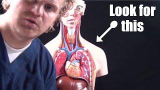 Pneumothorax for Nursing(collapsed lung) Animation, Treatment, Decompression, Pathophysiology
