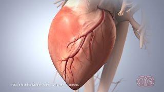 Symptoms of Sudden Cardiac Arrest   Cedars-Sinai