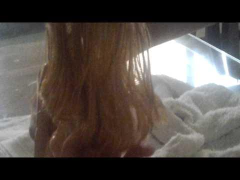 Mga larawan ng mga kababaihan na may alopecia