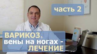 ВАРИКОЗ, причины, ЛЕЧЕНИЕ - часть 2. Как лечить варикозное расширение вен у женщин и у мужчин?