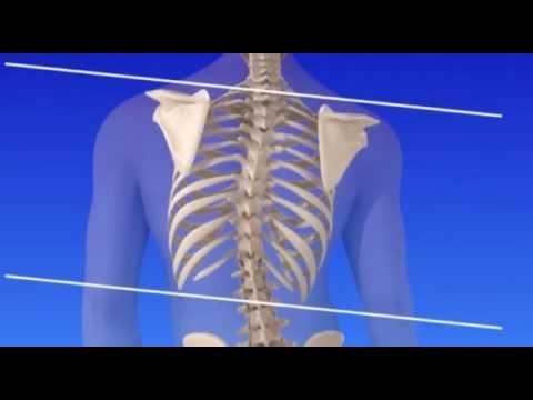 Левосторонний сколиоз грудного 1 степени упражнения