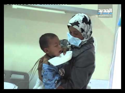 اخبار سوريا | السل يضرب النازحين من سوريا