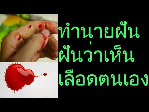 Thrombophlebitis หลอดเลือดดำซาฟินัปาก