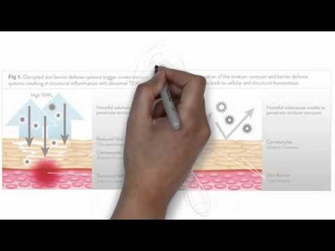 Das Ekzem und das Hautjucken
