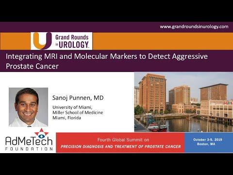 Zintegrowana rola MRI oraz markerów w rozpoznawaniu raka gruczołu krokowego