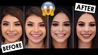 OUR CRAZY TEETH TRANSFORMATION .. SHOCKING!
