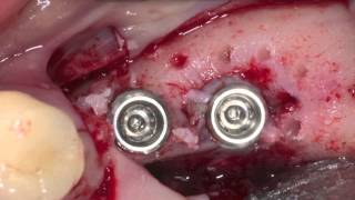 i-Gen membrane with AnyRidge Implant