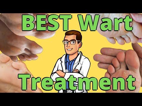 Cele mai eficiente tratamente parazitare