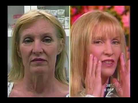 Dr. Mulholland Performs a ThreadLift Live on the Today's Show Video Thumbnail