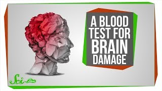 A Blood Test for Brain Damage, and AI Eye Doctors