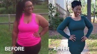 Ashley's Story - Adolescent Bariatric Surgery
