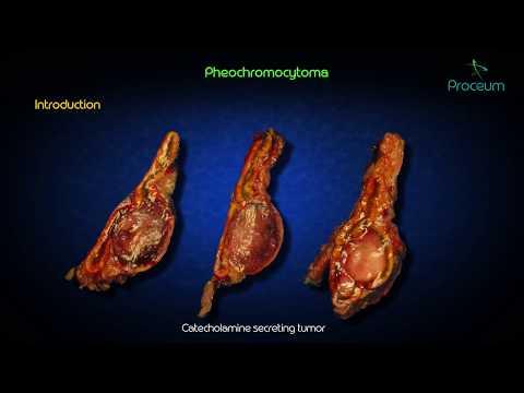 Wasser-Pillen der Beine in Hypertension Anschwellen