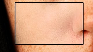 How to Make Skin Clean Without Losing Its Texture in Photoshop