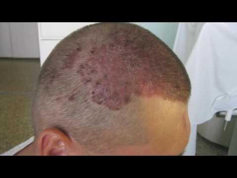 Тянет шею и затылок хруст в шейном отделе