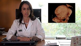 Cistoadenoma: ¿Qué es? Diagnóstico y tratamiento
