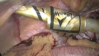 Laparoscopic Myomectomy + Endobag (Morsafe) Morcellation