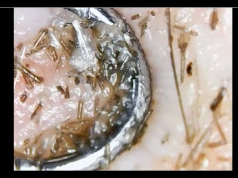Removing Scalp Acne and Dandruff! An educational video!