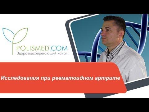 Исследования при ревматоидном артрите: рентген, МРТ, УЗИ. Ревматический и ревматоидный артриты
