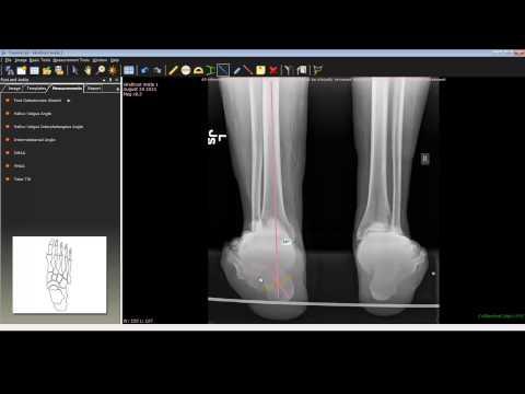 ทำไมนักบัลเล่ต์กระแทกเท้าบนขา