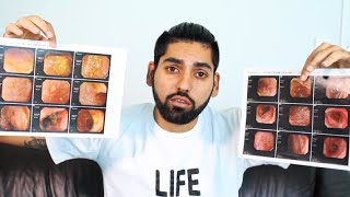 Proof that Ulcerative Colitis can be HEALED, CURED & REVERSED!