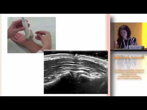 Artrosi deformante del ginocchio trattamento sintomi giunto