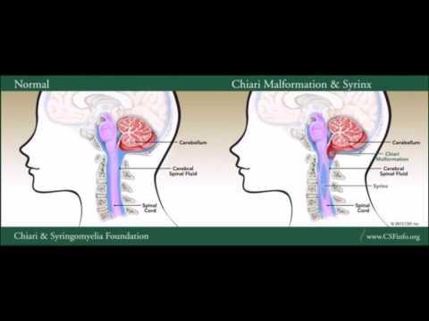 Suitsetamise mõju hindamiseks ja hüpertensioon