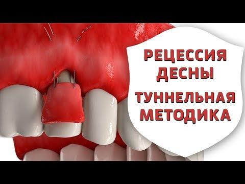 Оголились корни зубов? Лечение рецессии десны туннельной методикой   Дентал ТВ