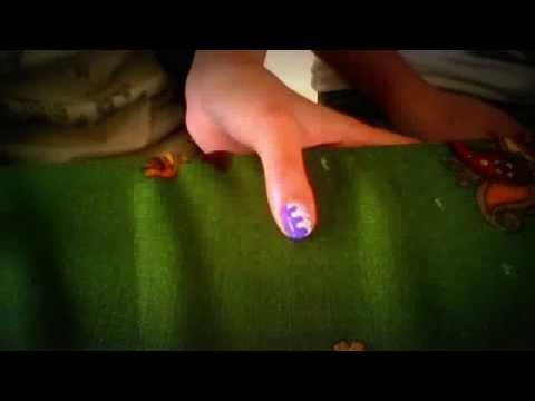 Comme guérir le microorganisme végétal sur les pieds sur les ongles et sur les doigts