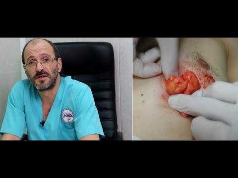 Жировик (липома, атерома), в чем разница, как лечить, стоимость операции