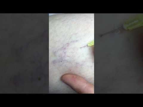 Les raisons de la varicosité en âge précoce