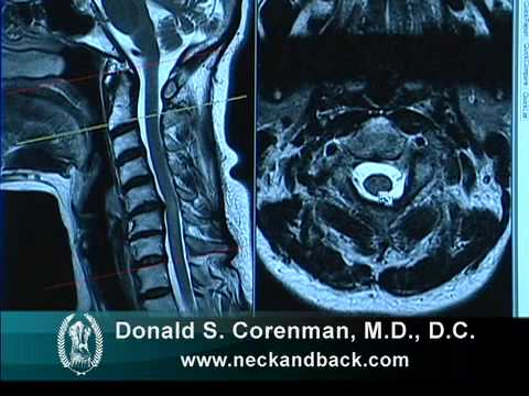How to Read a MRI of Cervical Stenosis with Spinal Cord Injury