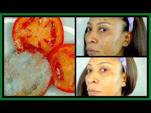 Salipod ng pigment spots