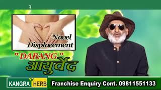 Varicose veins treatment with Kangra herbs