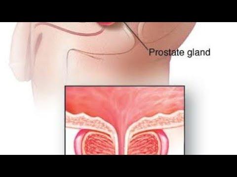 Narben auf der Prostata, die tun