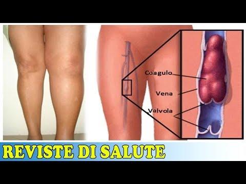 Varicosity su un trattamento di gamba o unoperazione