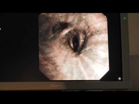 01 Соколов СА Бронхоскопия, биопсия Рак легкого OLYMPUS