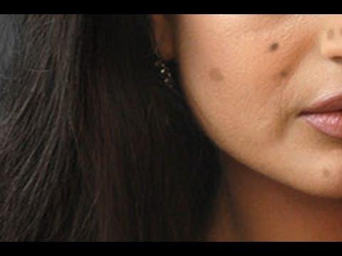 Pampaputi facial cosmetic pamamaraan