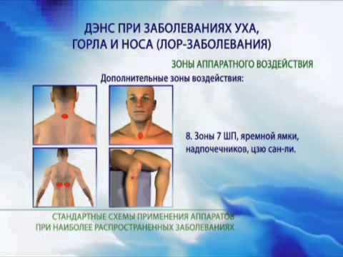 Сыроедение болят суставы